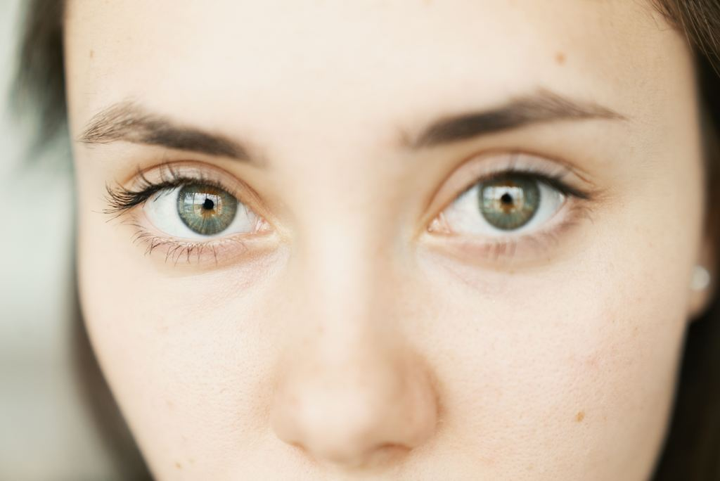 6 Natural Therapies Take The Sting Out of Pink Eye